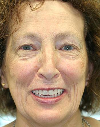 angst-zahnarzt-vollnarkose