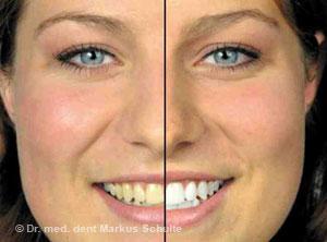 Mundpartie einer Patientin vor aesthetischer Zahnbehandlung