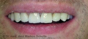 Sanierte Zähne eines Angstpatienten