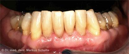 Zahnverbreiterung mit Komposit