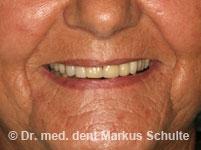 Huit implants sur la mâchoire supérieure