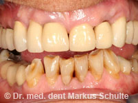 8 implants in the upper jaw