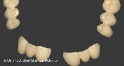 8 Implantate auf Oberkiefer