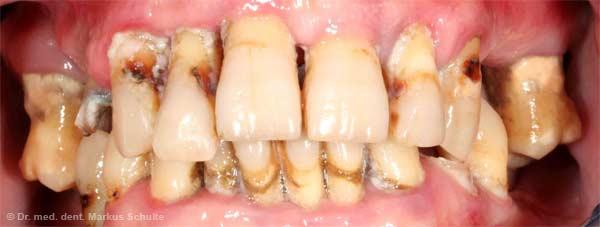 schlechte zähne mit 20