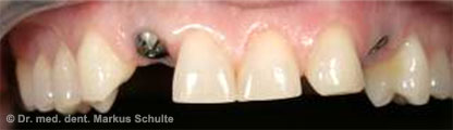 Einzelzahn-Implantate