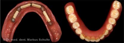Removable dental restoration on implants