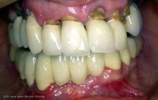 sourire avec un appareil dentaire