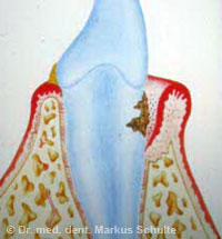 Paordontitis mit Taschenbildung und Knochenschwund
