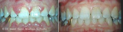 Gingivitis, Zahnfleisch-Wucherung