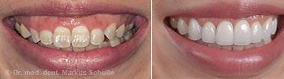 Zuviel Zahnfleisch, der sogenannte Gummy-Smile