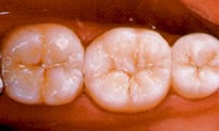 porcelain