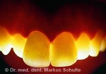 Lichtdurchlässigkeit von Keramik-Veneers