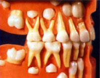 Der Zahnwechsel Kiefermodell