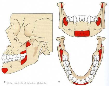 Mögliche Knochenentnahmestellen im Mund