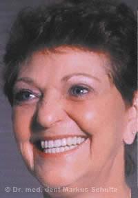 Zahnloser Kiefer nach Versorgung mit Implantaten