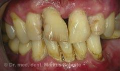 Fortgeschrittene Entzündung des Zahnhalteapparats