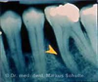 Fortgeschrittene Parodontitis mit tiefer Knochentasche