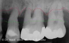 Schwere Parodontitis im Röntgenbild