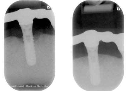 Regenerative Behandlung der Periimplatitis - Röntgenbild