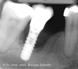 Periimplatitis Röntgenbild