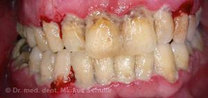 vernachlaessigte Mundhygiene