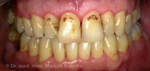 schlechte Mundhygiene aufgrund von Dentophobie