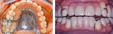Fehlende Zähne mit herausnehmbaren Klammerprothesen befestigt