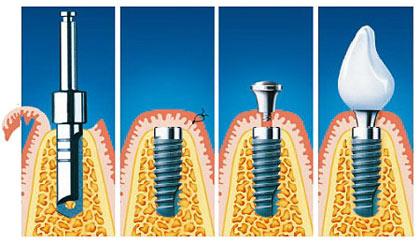 Schritt für Schritt: Einsetzung eines Implantats