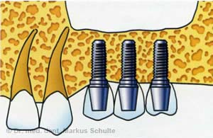Querschnitt Oberkiefer - Das Ersatzmaterial wird allmählich vom eigenen Knochen ersetzt