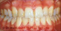 Zähne nach erfolgreicher Behandlung