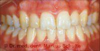 after dental braces treatment