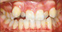 before dental braces treatment