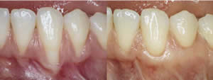 Photo: Gingival recession