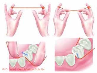 Zahnseide und zahnzwischenraumbürstchen