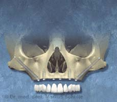 Zygoma Implantate